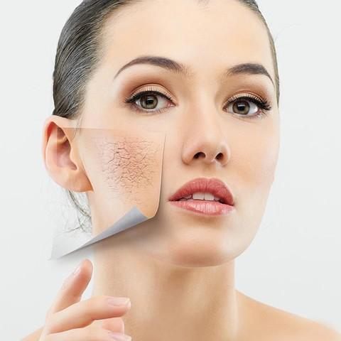 Cách trị khô và nẻ da cho mặt và toàn thân trong mùa đông